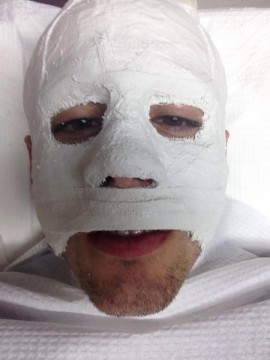 After using Hamilton's mask, Danny Calcaterra was fitted with a mold for his own. Photo courtesy of Danny Calcaterra.